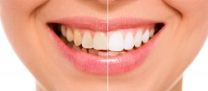teeth-whitening-2