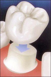 porcelain_veneers_bridges_crowns_newmarket