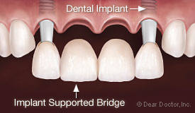 dental implant supported crowns and bridges