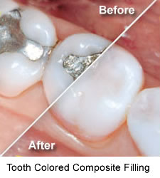 tooth colored composite filling