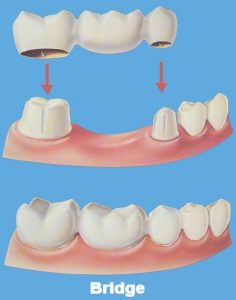 A dental bridge, crowns and bridges
