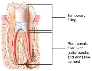 Illustration of the composite and gutta-percha fillings