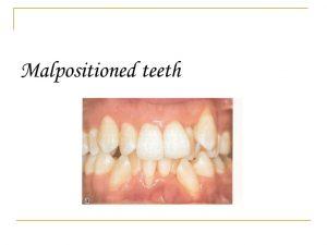 Malpositioned Teeth